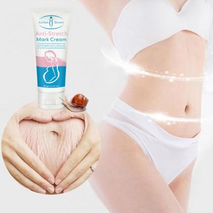 Anti Stretch Mark Cream【100% ORIGINAL】AICHUN BEAUTY Pregnancy Scar Removal Repair Cream Stretch Marks And Scar Removal Scar Care 淡化孕期生长纹橘皮纹肥胖纹 101074ACB